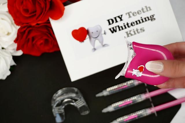 DIY TEETH WHITENING KITS review