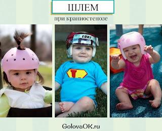 при краниостенозе дети носят шлем для закрепления результатов лечения