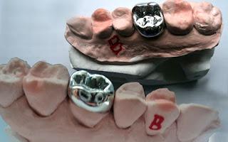 ondotologico Plano Odontológico com Prótese amil dental rede credenciada convenio odontologico #PlanoOdontológicocomPrótese #planoondotologico