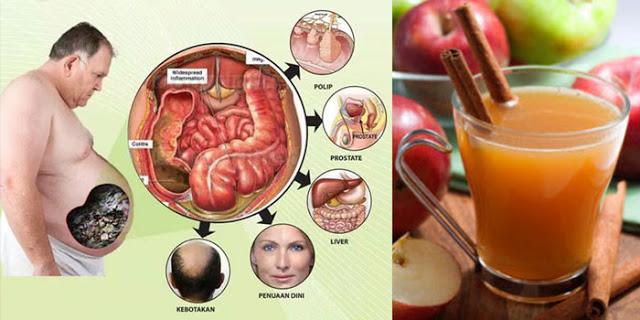 LUAR BIASA!!! Minuman Ini Berkhasiat Membersihkan Pencernaan, Membakar Lemak Dan Mengeluarkan Racun Dalam Tubuh