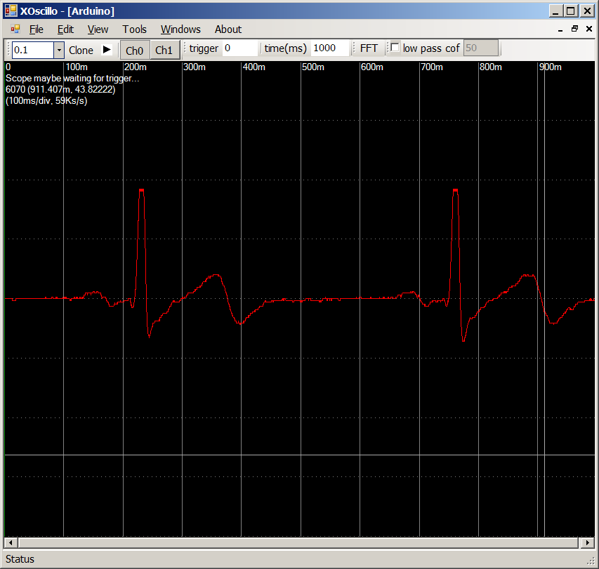 Coding Laboratory: Minimal ECG using an Arduino and Xoscillo