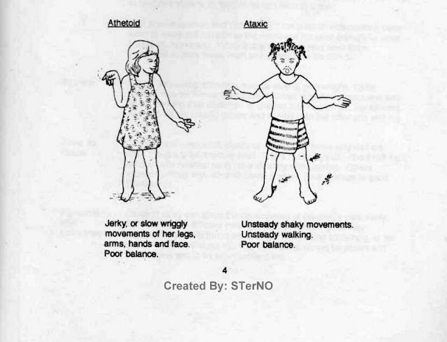 tipe CP athetoid dan ataxic