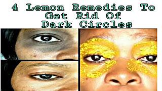 4 Lemon Remedies To Get Rid Of Dark Circles Dark Circles Remedies for Dark Circles with | How To Get Rid Of Dark Circles Fast | Top 10 Home Remedies