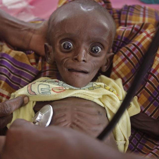Fotografia di bimbo denutrito in Somalia