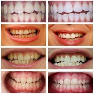comparacion blanqueamiento dental y riesgos