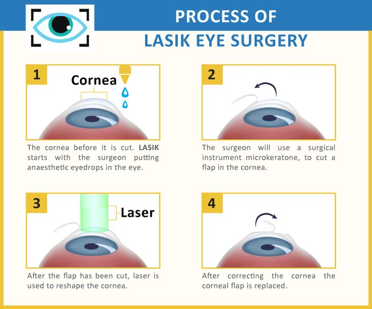 Samy Valero: My Eye Lasik Experience with Dr Tirado Clinic