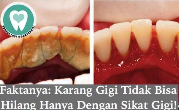 Faktanya Karang Gigi Tidak Bisa Hilang Hanya Dengan Gosok Gigi