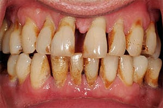 An advanced form of a gum disease picture
