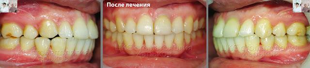 Зубы после лечения брекетами случая смещенной средней линии