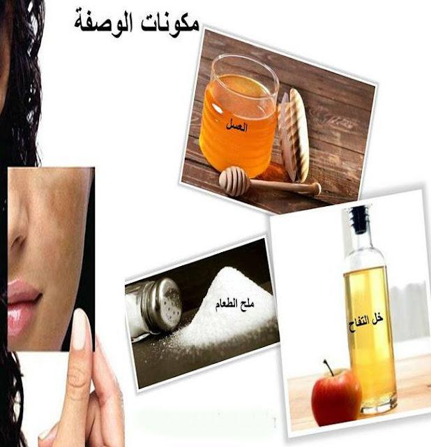 وصفة الخل و الملح (للتخلص من الكلف و النمش)