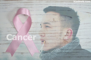 What is Cancer, Symptoms, Causes and Treatment in hindi