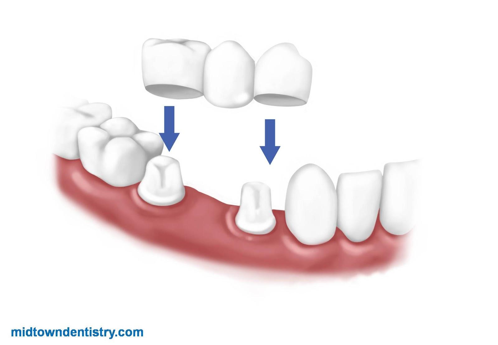 ما هي جسور الأسنان ؟