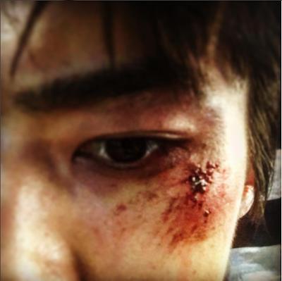 Pamer Foto Penuh Luka, Sehun Beri Petunjuk MV Comeback EXO?