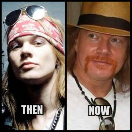 Axl Rose then now