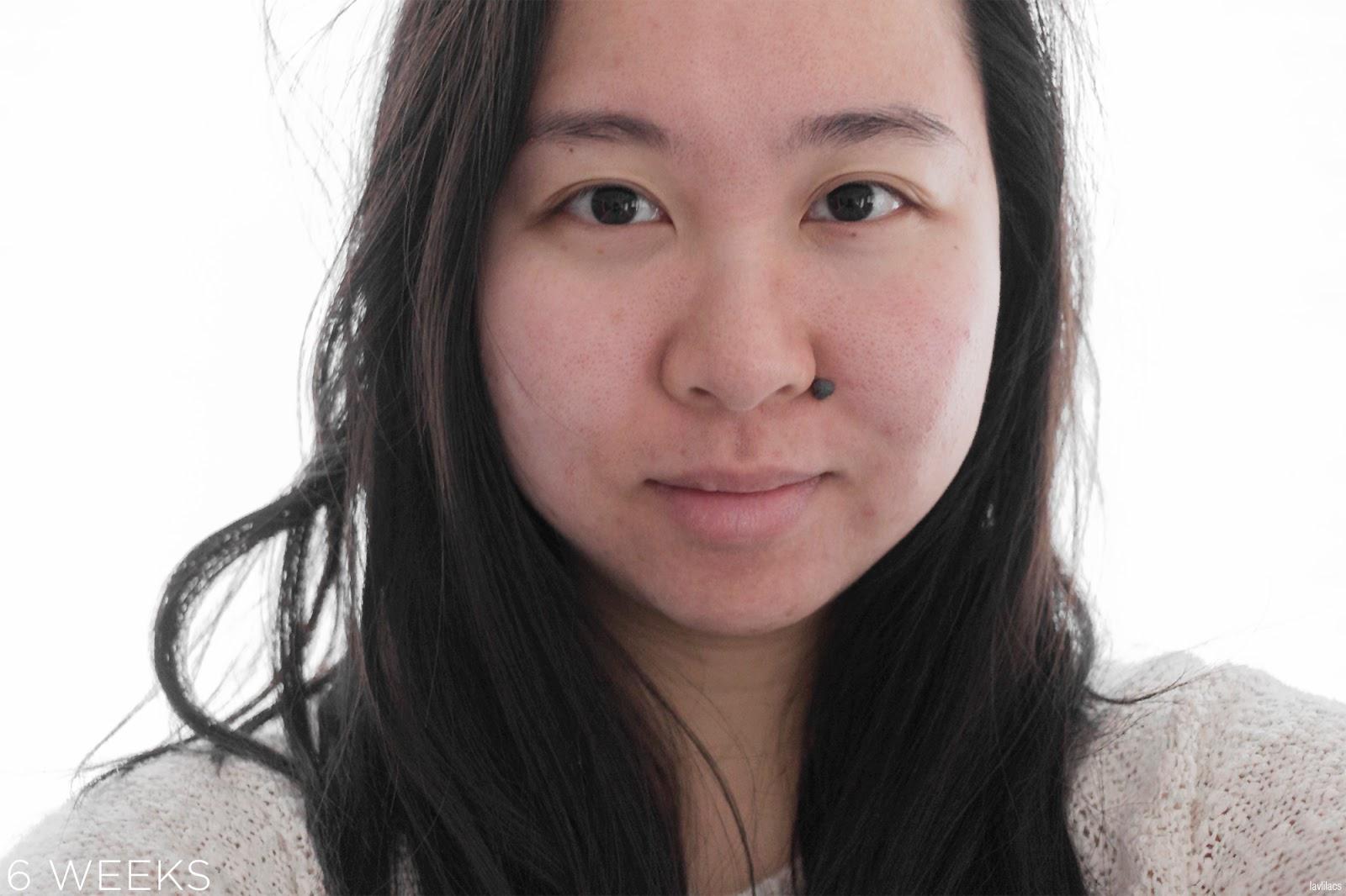 tria Hair Removal Laser Facial Hair 6 Weeks