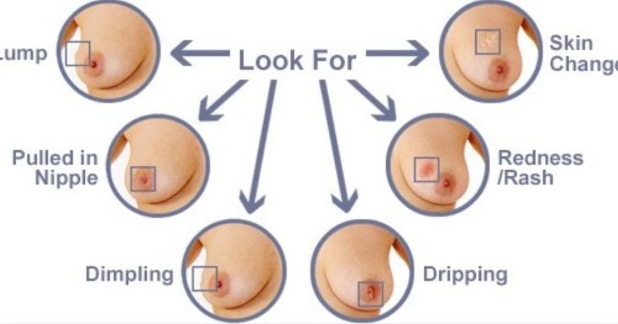 Inverted Nipple Breast Cancer Canceroz