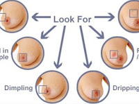 Inverted Nipple Breast Cancer