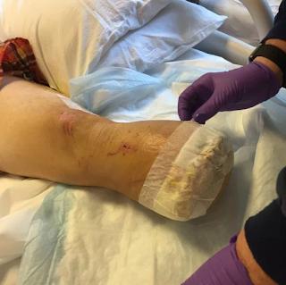 Man foot amputated