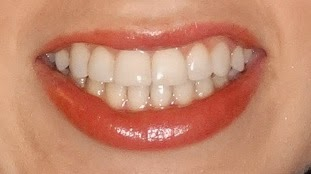 orthodontic after photo
