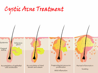 causes and treatment of cystic acne best treatments for acne Ovarian Cyst Diagram causes and treatment of cystic acne