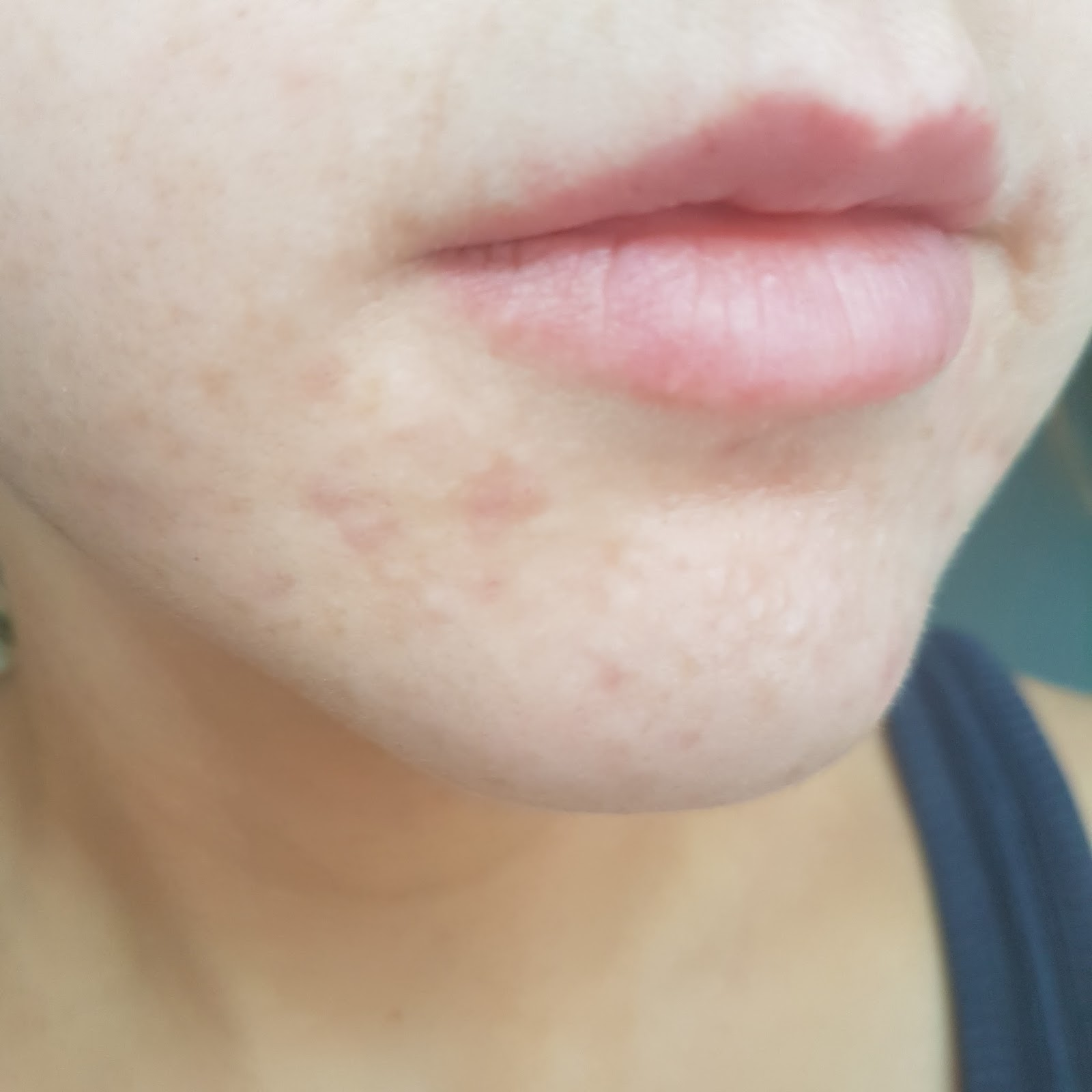 Acne After Image