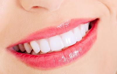 https://www.dentistinchennai.com/smile-makeover