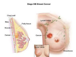 cara-ampuh-mencegah-kanker-payudara-sejak-dini-yang-aman