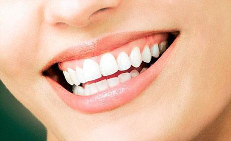 Gigi Putih Alami
