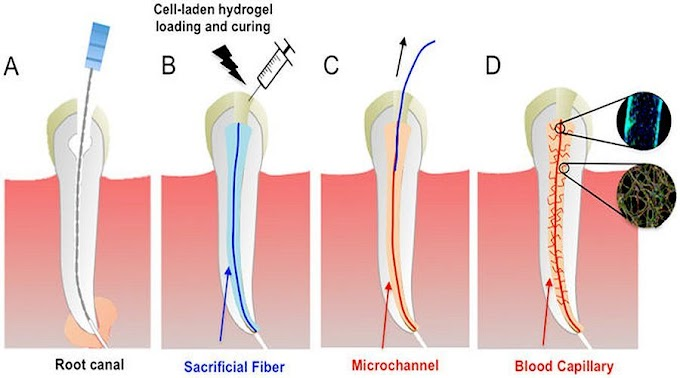 DENTAL PULP: A Novel Strategy to Engineer Pre-Vascularized Full-Length Dental Pulp-like Tissue Constructs