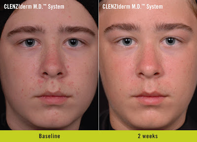 benzoyl peroxide for acne before and after photo 2