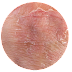 Mengenal Jenis-Jenis Alergi Pada Kulit