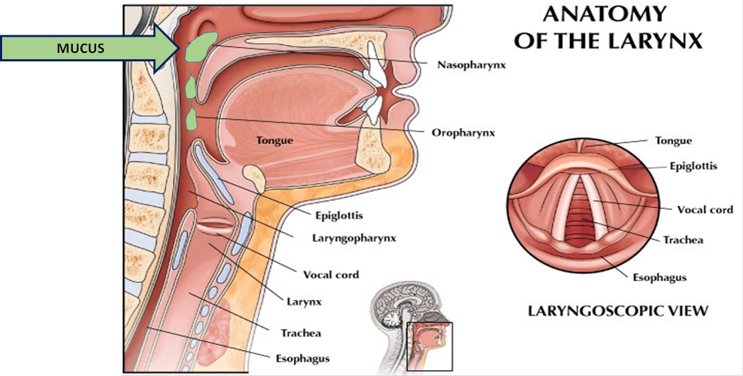 Can Gerd Cause Food To Stuck In The Throat