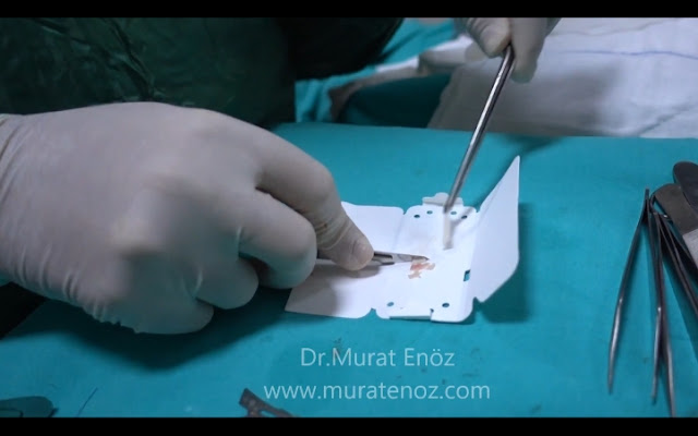 Camouflage method with mixture of cartilage powder and blood - Preparing of cartilage paste - Cartilage mud - Cartilage powder - Nose aesthetic Istanbul - Rhinoplasty in Istanbul - Rhinoplasty in Turkey