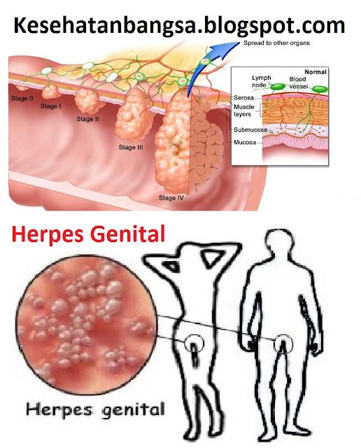 Herpes Genitalis Pada Wanita dan Pria