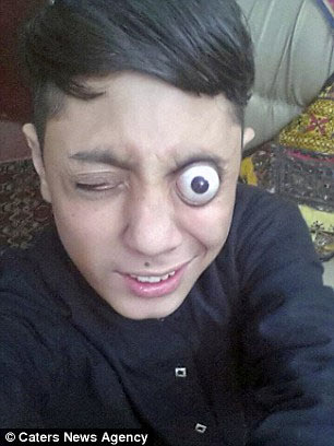 This little boy can pop out his eyeballs from their socket, and pop them back