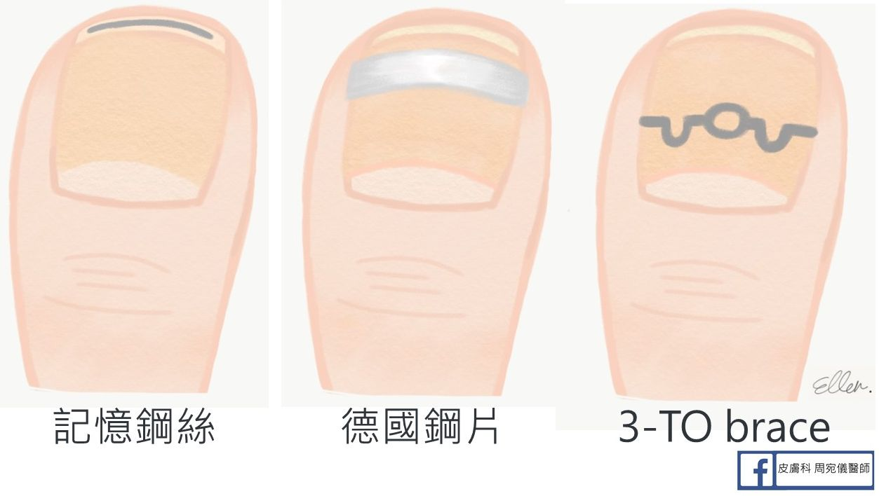 皮膚科 周宛儀醫師: 凍甲好痛怎麼辦?最完整的凍甲處理與指甲矯正器懶人包!