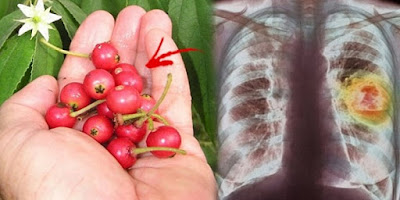 Not Everyone Knows That Aratilis (Kerson Fruit Or Muntingia) Can Do This To Your Health!