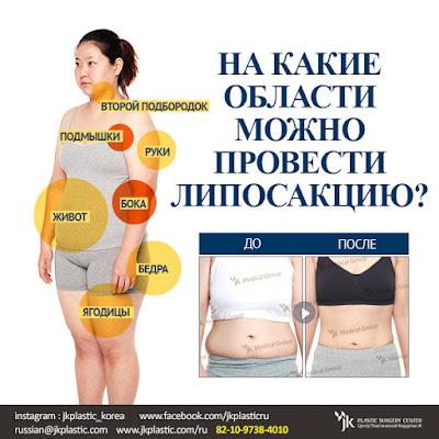 области проведения липосакции, липосакция в корее, липосакция живота