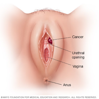 Vulva of cell squamous cancer the
