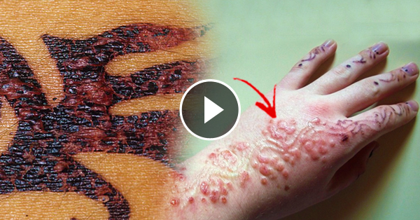 Tattoo Reaction Henna Treatment