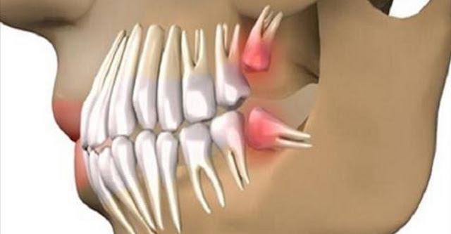 GOODBYE DENTAL IMPLANTS, GROW YOUR TEETH FOR ABOUT 9-10 WEEKS