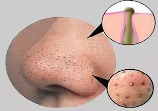Remove Blackheads Permanently