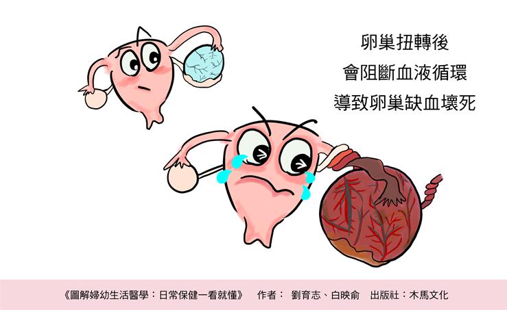 卵巢扭轉會導致卵巢缺血壞死