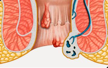 Doutor revela tudo sobre a sua colonoscopia,diverticulose,  hemorróidas ou ambas