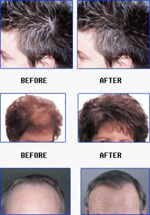 Hypothyroid Hair Loss