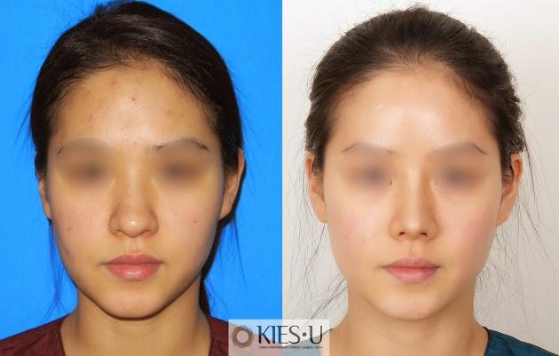 Plastic surgeon in Korea: revision rhinoplasty - side ...