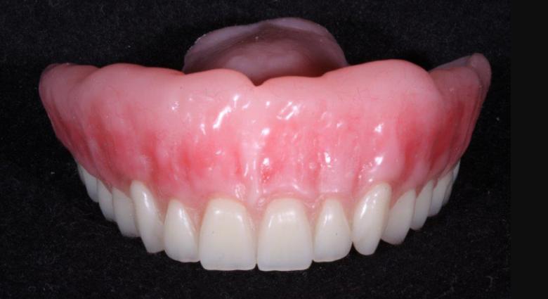 Cara Merawat Gigi Palsu Pasien Ilmu Kesehatan Dan Keperawatan