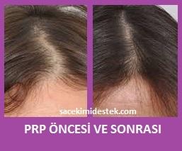 prp saç tedavisi yaptıranlar 14