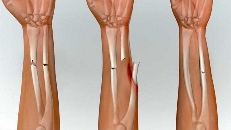 Pertolongan Pertama Untuk Mengatasi Patah Tulang - STORIES OF JUPLE 69475c8d4e