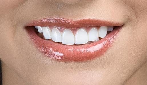 ma routine dentaire pour blanchir les dents 100 naturel plus un dentifrice fait maison. Black Bedroom Furniture Sets. Home Design Ideas